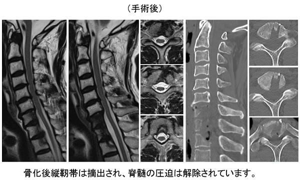 骨 後 縦 化 有名人 靭帯 症
